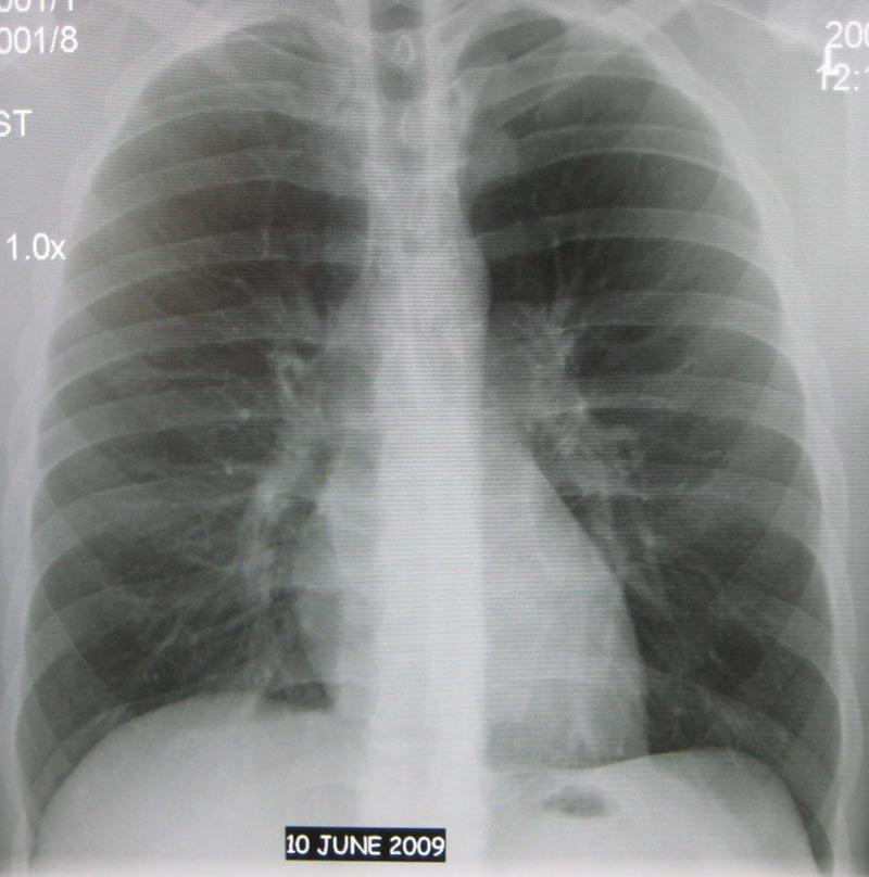 Флюрография-легких