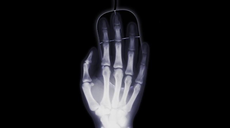 Отличие-флюорографии-от-рентгена